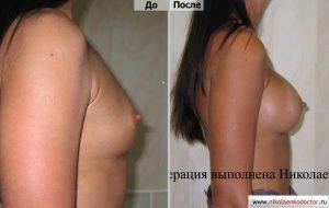 Увеличение груди и маммопластика хирург Николаенко Игорь Леонидович