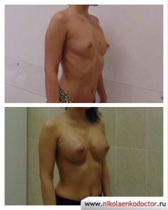 Операцию по увеличению груди (маммопластика) в Воронеже выполнил пластический хирург Николаенко Игорь Леонидович